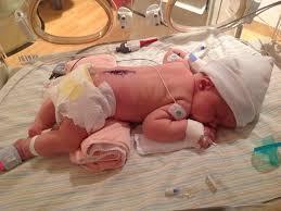 spina bifida baby